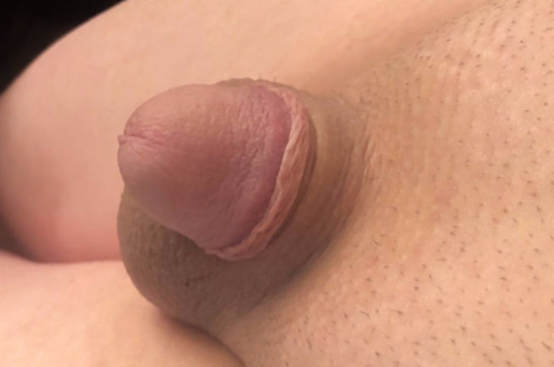 White Small Dick